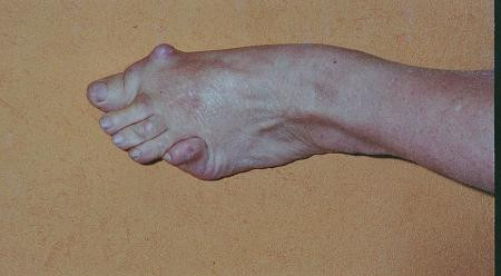 polyarthrite des pieds